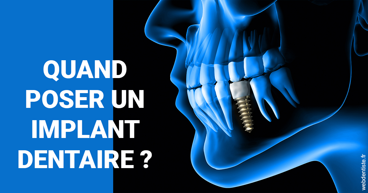 https://www.implantcentrerosas.com/Les implants 1